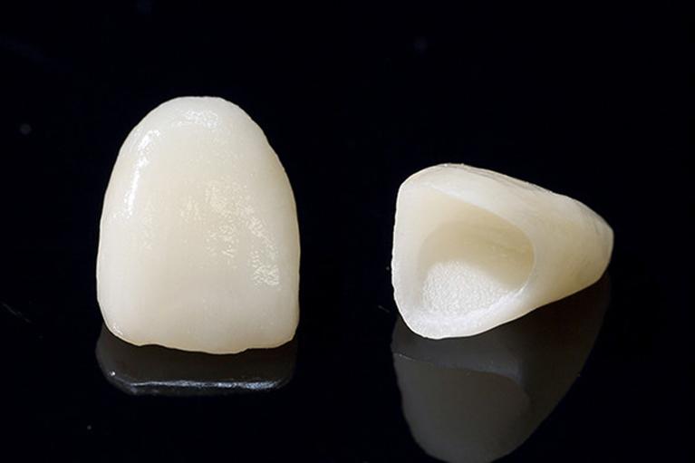 深いむし歯の被せ物 (クラウン)-前歯-