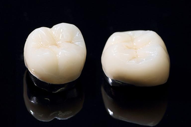 深いむし歯の被せ物 (クラウン)-奥歯-