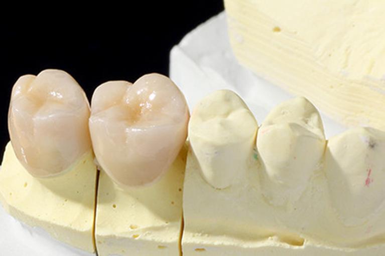 深いむし歯の被せ物 (ブリッジ)-奥歯-
