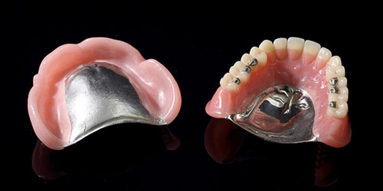 金属床シリコン義歯