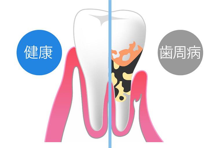 老化と歯周病は関係がない?