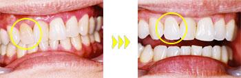 【神経を取った歯のホワイトニング例】