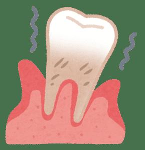 喫煙と歯周病