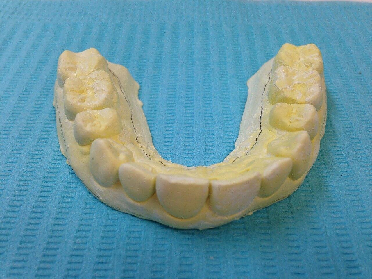 医院のスタッフも歯を美しくきれいにするために頑張っています♪
